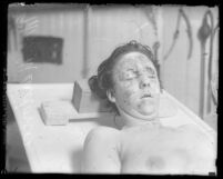 Clara Phillips' murder victim Alberta Meadows on autopsy table shown from shoulders up, Los Angeles, Calif., 1922