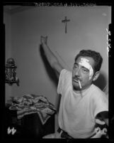 Father of witness displaying wounds from beating during State Senate hearing on narcotics trafficking in Los Angeles, Calif., 1955