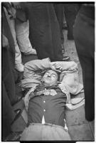 Unidentified young man injured during a workers' strike, Los Angeles, 1937
