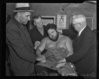 Wrestler Man Mountain Dean after his battle with Vincent Lopez, Los Angeles, 1936